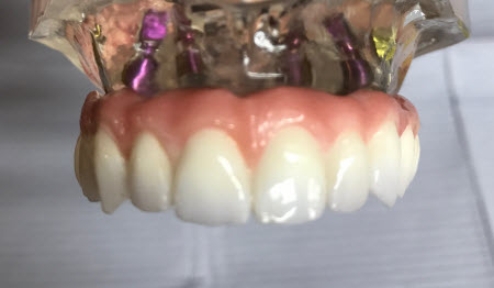 prettau-dental-implant-bridge