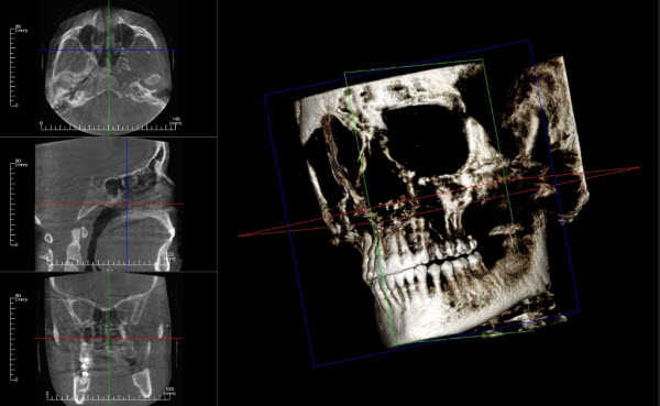 cbct-3d-scan-image